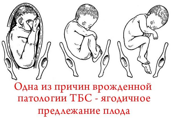 Как лечат незрелость тазобедренных суставов