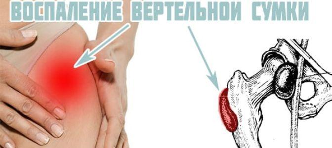 Как распознать и лечить бурсит тазобедренного сустава?