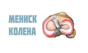 Мениск колена: строение, где находится, как болит и способы лечения