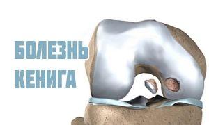 Болезнь Кенига коленного сустава или рассекающий остеохондрит