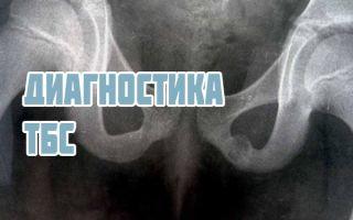 Рентген, МРТ, УЗИ тазобедренных суставов у взрослых и детей