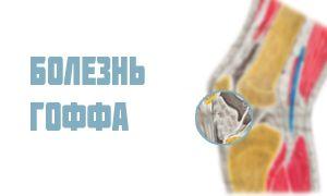 Болезнь Гоффа коленного сустава: симптомы и лечение липоартрита