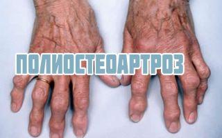 Полиостеоартроз суставов кистей рук и стоп, симптомы и лечение