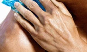 Бурсит плечевого сустава: как распознать и лечить заболевание?