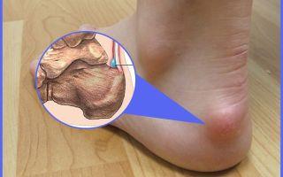 Ахиллобурсит — что это за болезнь и как с ней справиться