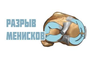 Повреждение мениска коленного сустава: разрывы, надрывы, ушибы и смешения