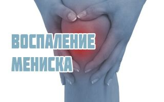 Дегенеративные изменения менисков коленного сустава, признаки и лечение