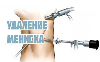 Операция на мениске коленного сустава и послеоперационный период