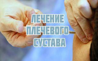 Как лечить и укреплять плечевой сустав, блокада, реабилитация и разработка
