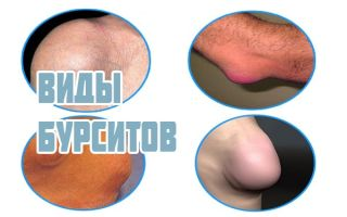 Как лечить бурсит и правильно его диагностировать