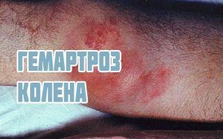 Гемартроз или кровь в суставе, симптомы и стадии болезни