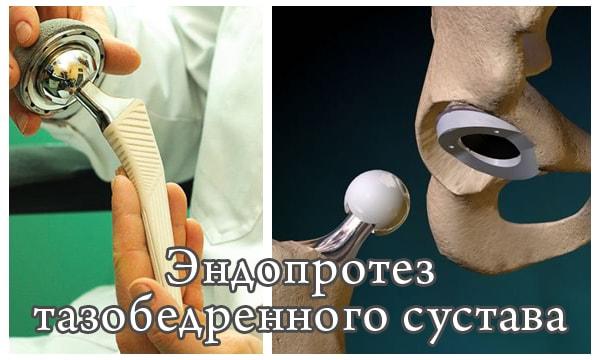 Эндопротезы