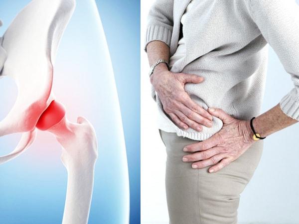 Как лечить суставы таза