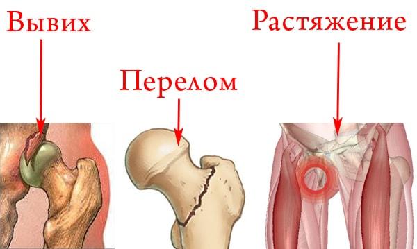 механические повреждения таза