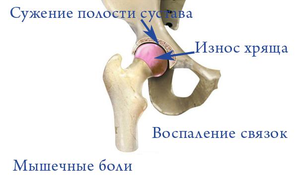 Причины боли в бедре