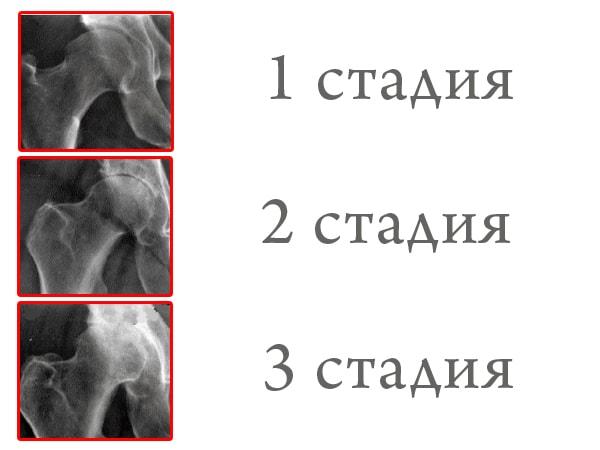 Снимок разрушения суставов таза