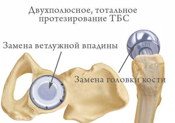 тотальное протезирование