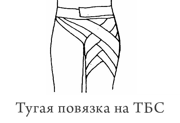 тугая повязка ТБС
