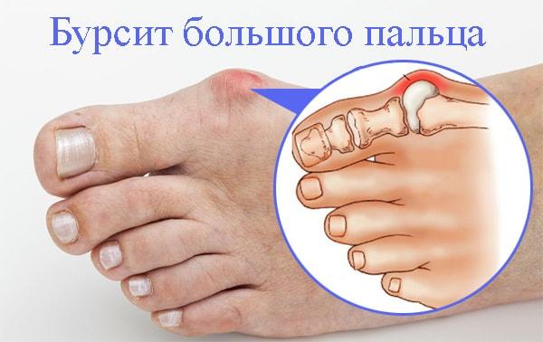 Бурсит пальца на ноге