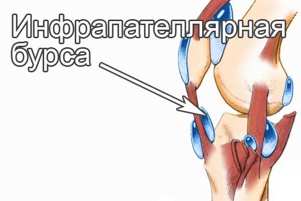 Инфрапателлярный бурсит коленного сустава