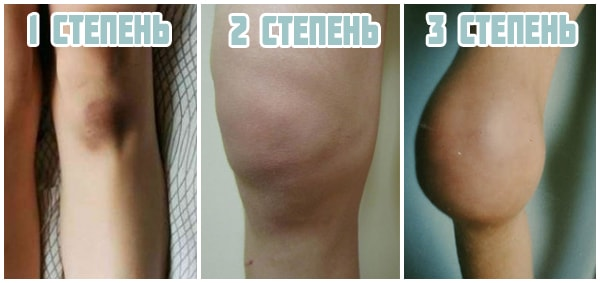 стадии гемартроза