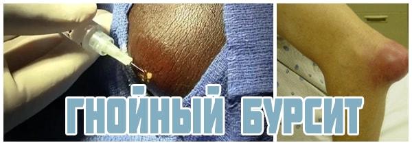 Изображение - Суставная сумка локтевого сустава gnojnyj-bursit-loktevogo-sustava