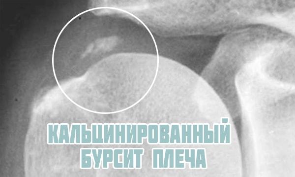 Кальцинированный бурсит плеча