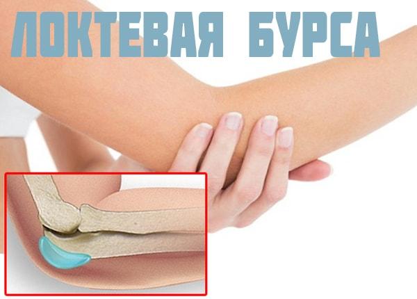 Изображение - Суставная сумка локтевого сустава loktevaya-bursa