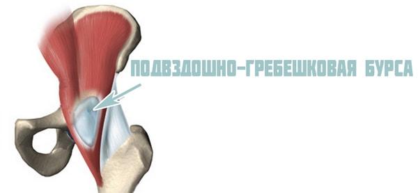 Подвздошно-гребешковая бурса