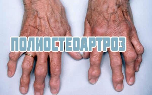 Деформирующий полиостеоартроз