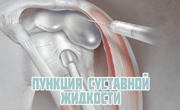 Симптомы ревматоидного артрита лечение