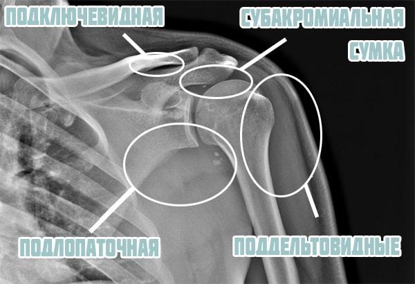 Сумки плечевого сустава