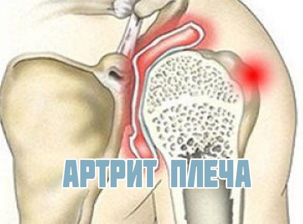 артрит плеча