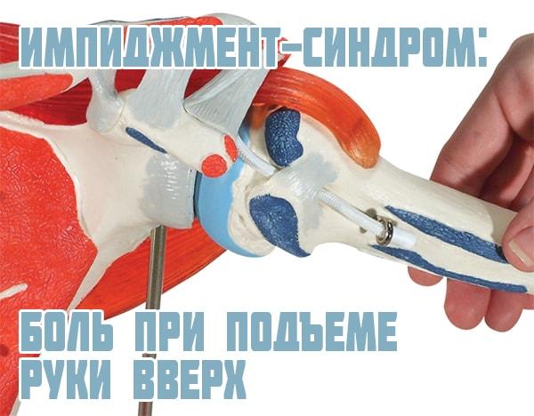Импинджмент синдром плечевого сустава