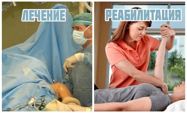 Операция и реабилитация