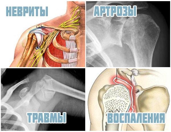 Болит правый плечевой сустав причины