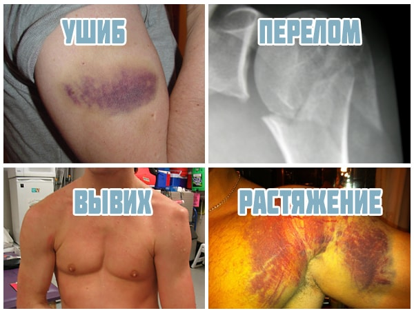 Виды травм плеча