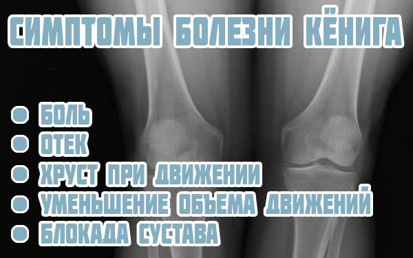 Симптомы рассекающего остеохондрита