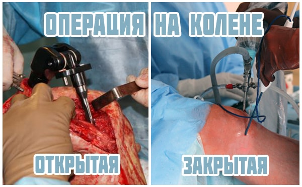 Виды операций